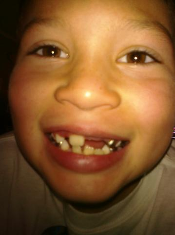 Brens missing teeth!